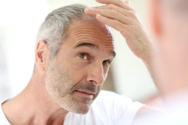 Håret tillbaka med hjälp av en hårtransplantation